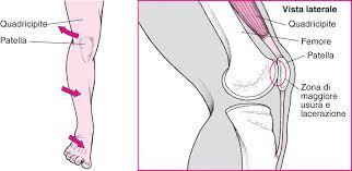 Le principali cause del dolore al ginocchio nei più giovani